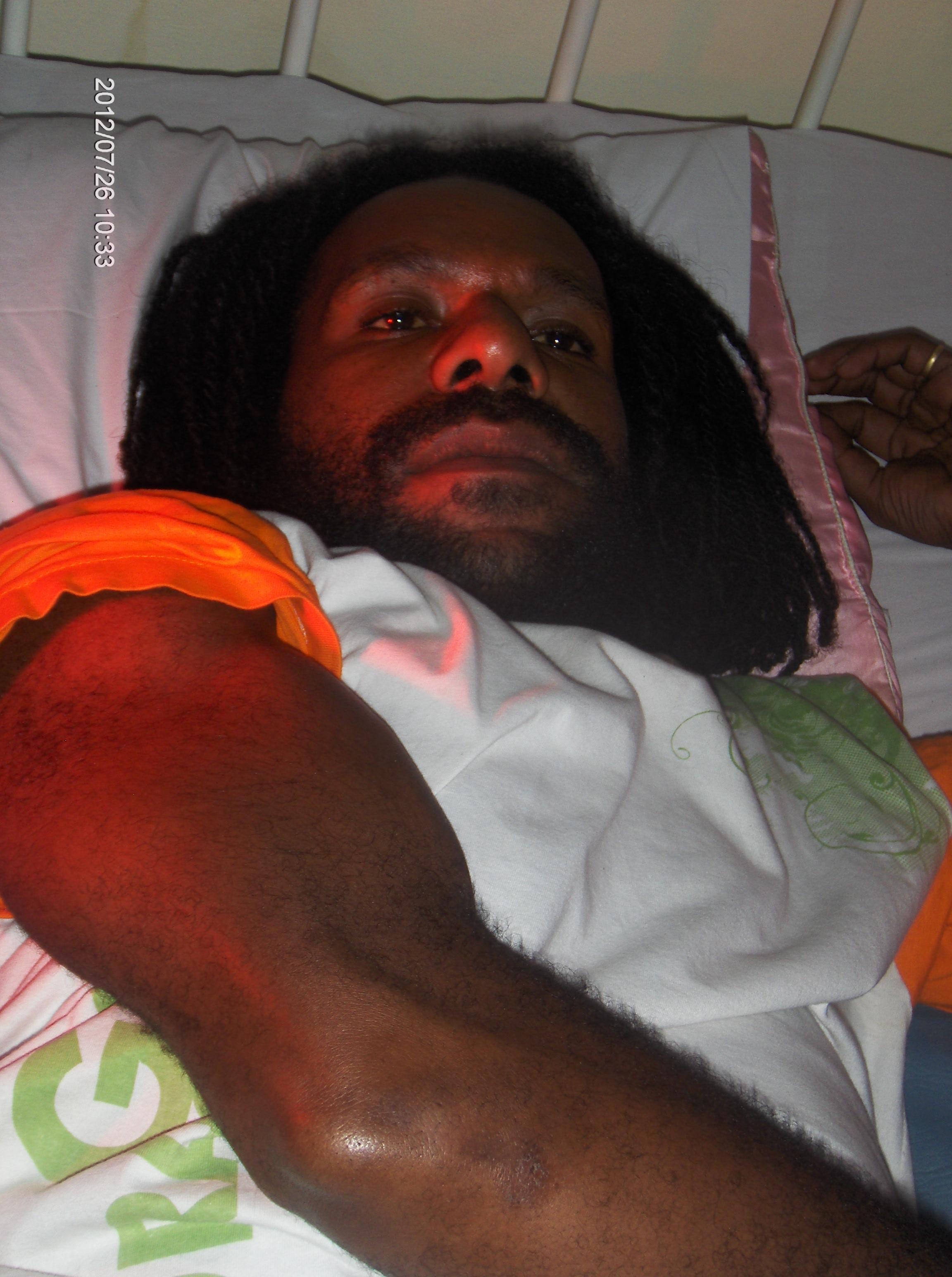 Jafrai Murib in hospital